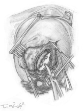fracture crane embarrure extraction