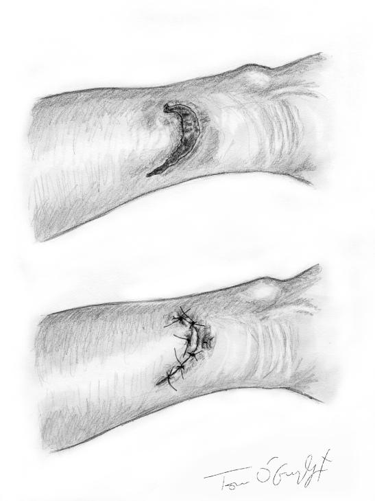 plaie cutanee superficielle suture