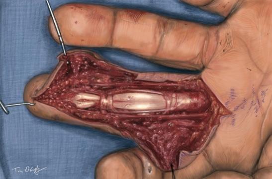 débridement chirurgical d'un doigt après injection à haute pression