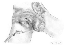 gangrene perineale Fournier