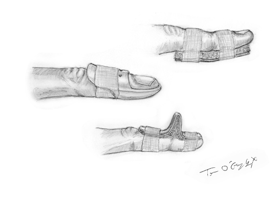 mallet finger attelles
