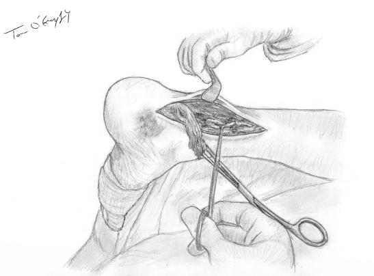 rupture tendon Achille suture