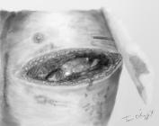 thoracotomie antero latérale, vue de la plaie opératoire