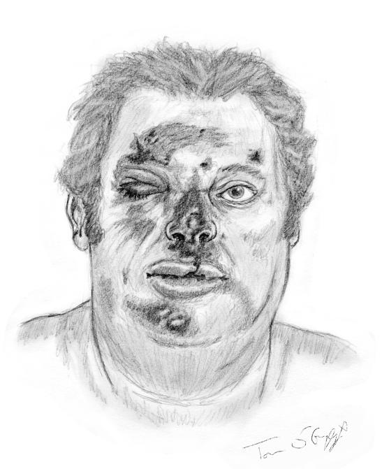 dermabrasion faciale grave