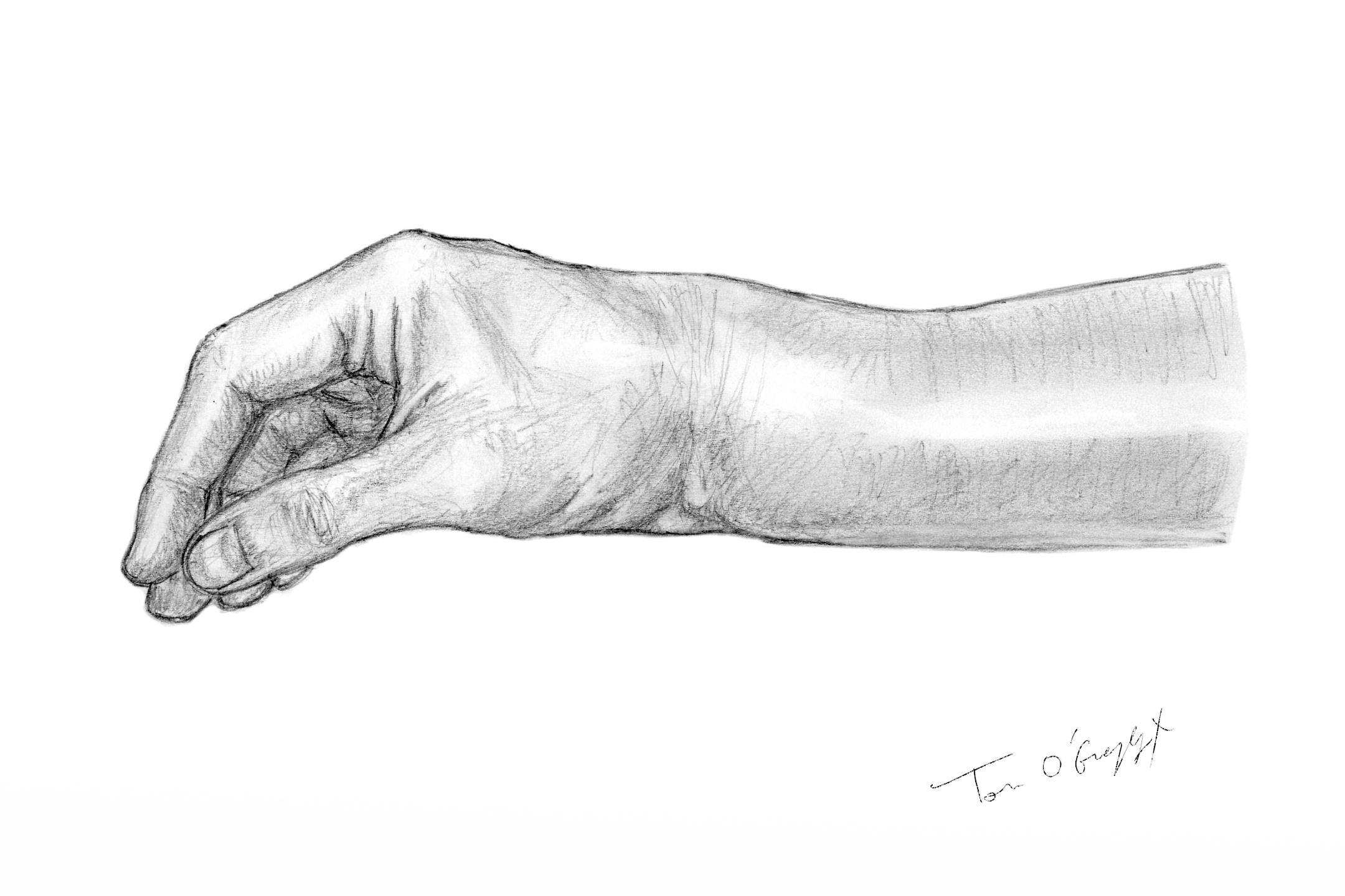 personnalisé arrive réflexions sur Fracture de Pouteau Colles | thoracotomie