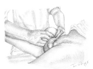 tentative de réduction de volumineuse hernie inguinale droite