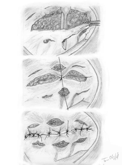 incisions de decharge cutanee
