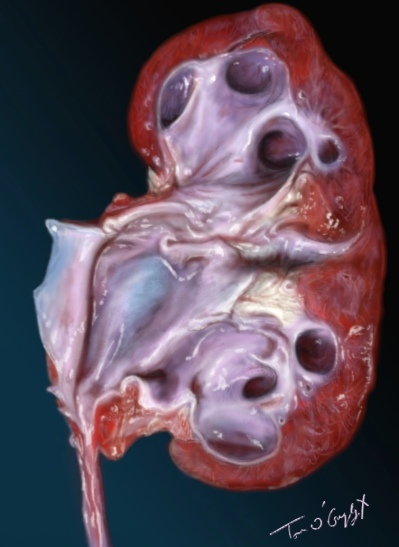 colique nephretique hydronephrose