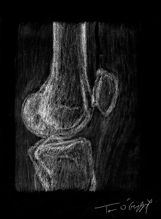 plaie articulaire pneumarthrose radiographie