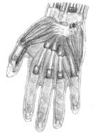 gaine synoviale tendon flechisseur main