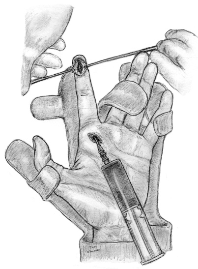 lavage phlegmon gaine synoviale tendon flechisseur