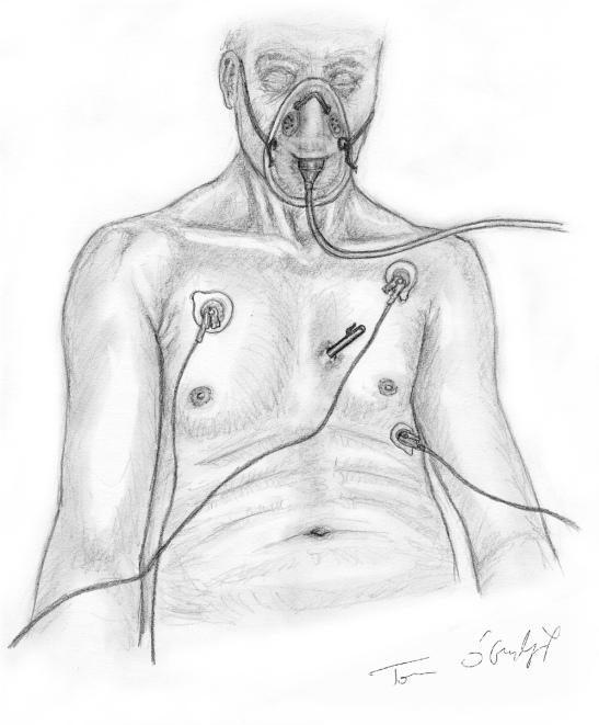 plaie thorax superficielle