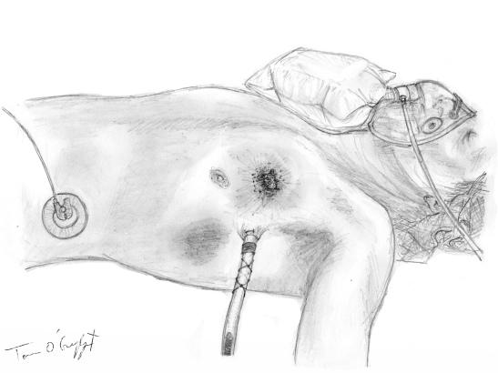 traumatologie thorax drain
