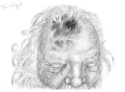 plaie scalp contusion