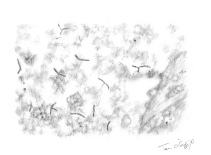 tuberculose pulmonaire bacides de Koch