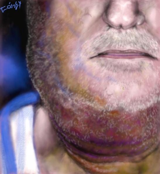 erysipele face