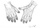 gelures mains doigts