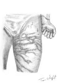 piqures meduse chironex