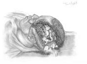 lacération étendue en scalp incomplet : pas de perte de substance mais lambeau rétracté sur le côté laissant la galéa à nu