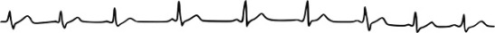 arythmie respiratoire