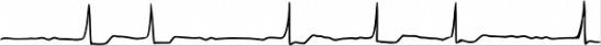 bradyarythmie par fibrillation auriculaire