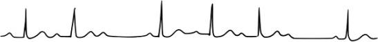 bloc auriculo-ventriculaire du 2d degré Mobitz 1