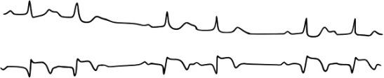 bloc auriculo-ventriculaire du 2d degré Mobitz 2 au cours IDM