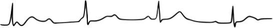 bloc auriculo-ventriculaire du 3e degré