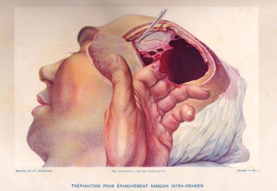 Lejars trépanation hématome extra-dural