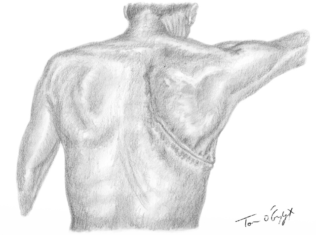 Thoracotomie postéro-latérale | thoracotomie