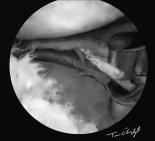 genou arthroscopie menisque ciseau shaver