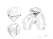 fracture rotule
