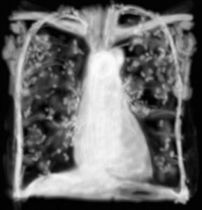 RP pneumopathie d'hypersensibilité