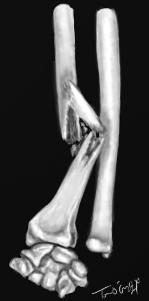 fracture de Galeazzi