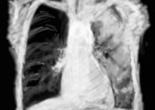 RP pneumonie PFLA