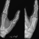 entorse metacarpo phalangienne pouce radiographie