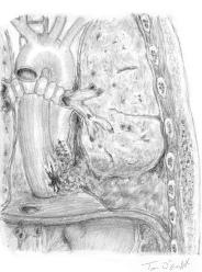 syndrome de Boerhaave rupture oesophage
