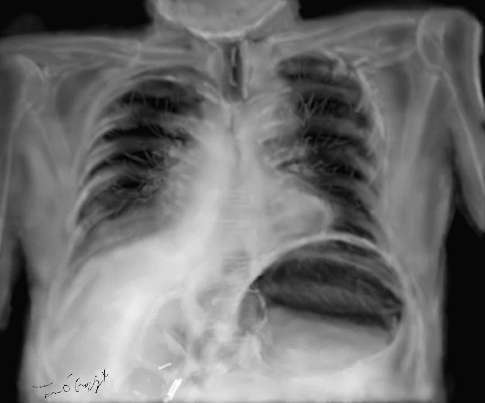 Dilatation aiguë de l'estomac, volvulus gastrique | thoracotomie