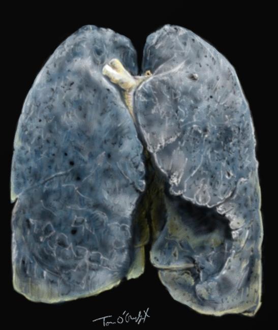 poumon fumeur exacerbation BPCO emphyseme