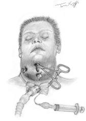 angine Ludwig old