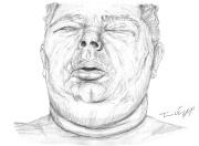 oedeme face