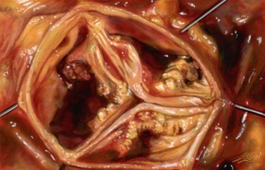 retrecissement valve aortique