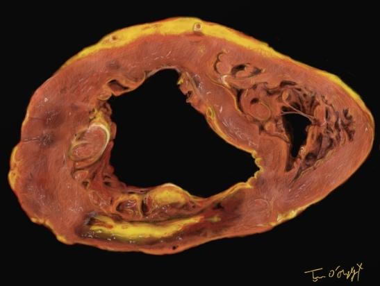 infarctus du myocarde, zone de nécrose en coupe autopsique