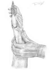 reduction fracture poignet 2