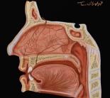 epistaxis fosses nasales