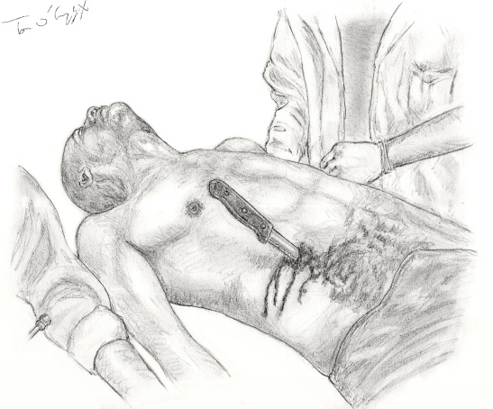 Plaie abdomen arme blanche