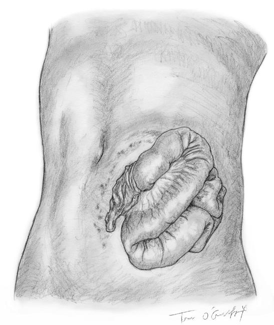 Plaie abdomen evisceration