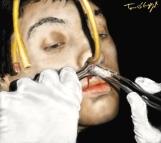 tamponnement nasal epistaxis