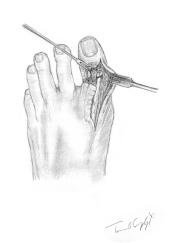 suture tendon extenseur pied