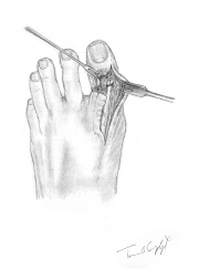 suture tendon extenseur pied
